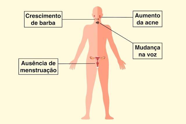 sintomas-de-testosterona-alterada-no-homem-e-na-mulher-640-427